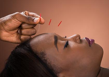 L'acupuncture et l'homéopathie